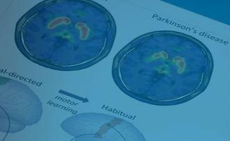 Investigadores del HM CINAC podrían facilitar nuevos tratamientos del Parkinson
